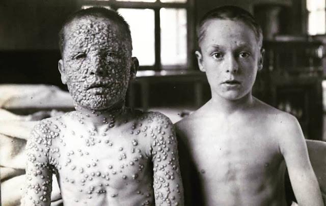 variola-a-doença-mais-forte-que-existiu