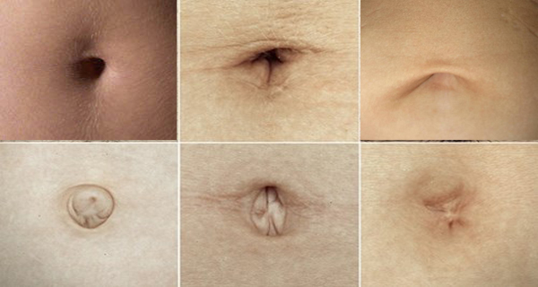 Your Belly Button Shape Holds Big Secret