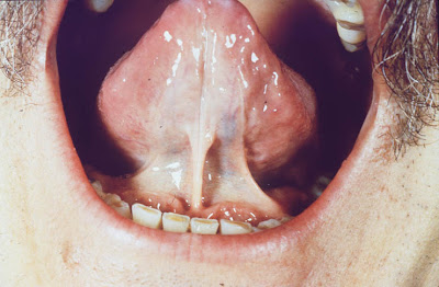 Scleroderma Ain Health