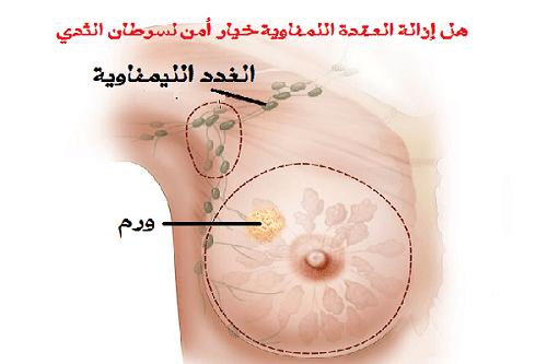 ماذا تعرف عن سرطان الثدي