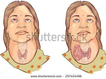 Hipertiroid, Penyakit Apa Sih ?