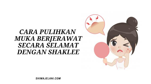 Cara Pulihkan Muka Berjerawat Secara Selamat Dengan Shaklee