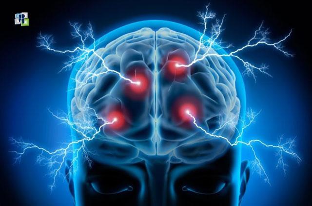 Epilepsy نوبة الصرع