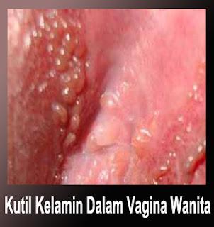 Gambar obat kutil kelamin terpercaya daerah ibukota jakarta di vagina