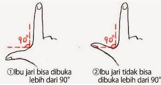 2.Ibu jari bisa dibuka lebih dari 90 derajat atau tidak