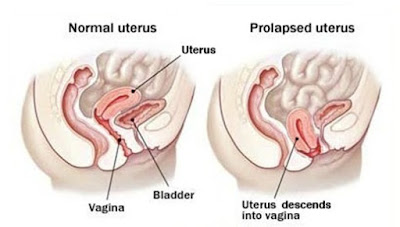 https://www.altiushospital.com/Laparoscopic-Sling-Procedures-Treatment.html