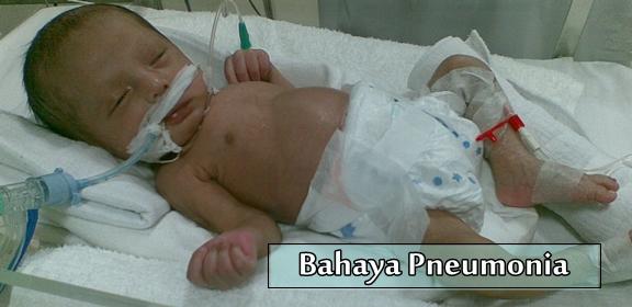 Bahaya Pneumonia Pada Bayi