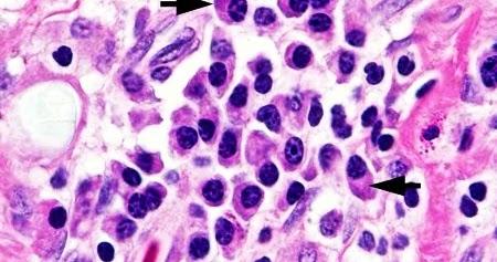 El papel de la inflamación crónica en ciertas enfermedades