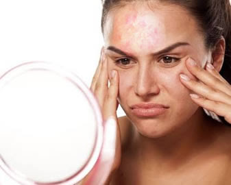 Ayurvedic And Dermatology Treatments Ayurvedic Treatment For Eczema