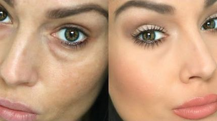 HOW TO: MAKE EYE BAGS VANISH IN SECONDS!