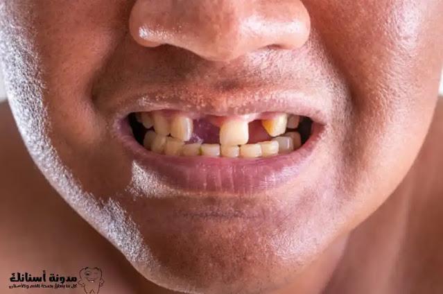 10 نصائح لمنع تساقط الأسنان.