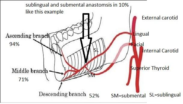 vascular concerns dental implants