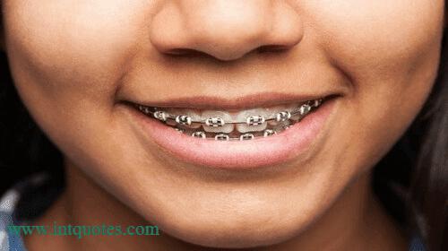هل التقويم يطيح الاسنان , احس اسناني بتطيح من التقويم