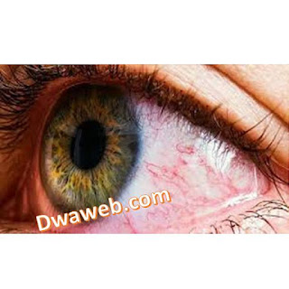 بريزولين نقط أفضل علاج لحساسية العين واحتقانها
