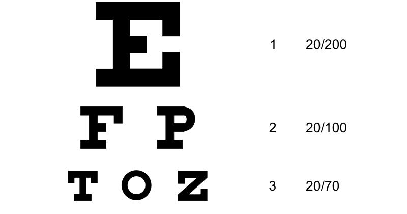 Mis Mentiras Favoritas: Los ópticos siempre nos ponen a
