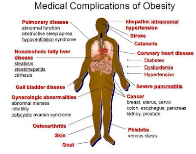 Facts about Obesity