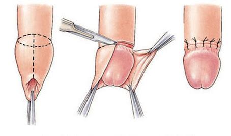 Phương pháp phẫu thuật bệnh hẹp bao quy đầu
