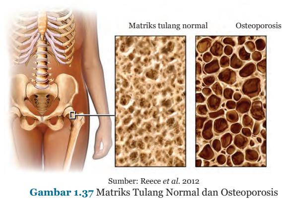 Gambar 1.37 Matriks Tulang Normal dan Osteoporosis