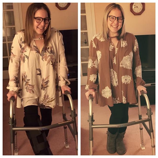 Jamie Allison Sanders, broken ankle, walker, Free People Tree Swing top, Ugg Australia Classic Short Boots, Hue Cotton Leggings, before and after