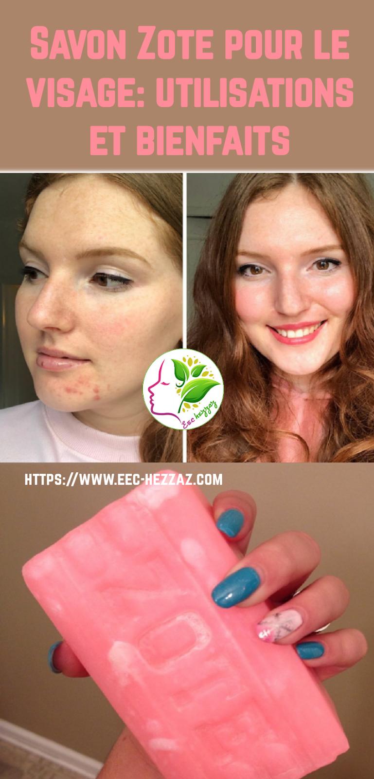Savon Zote pour le visage: utilisations et bienfaits