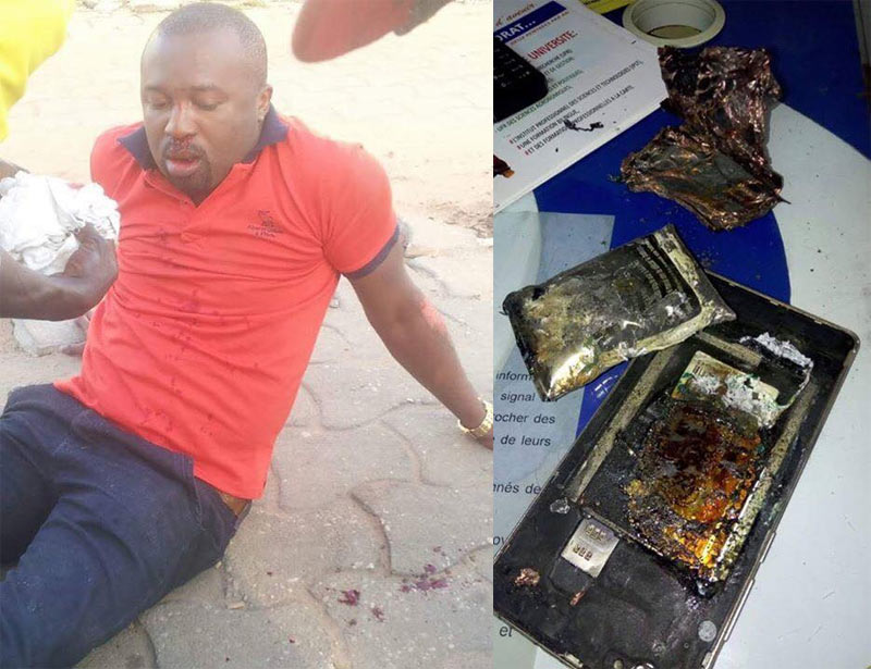 Samsung Galaxy Note 3 explosion reportedly causes severe burns on man's laps