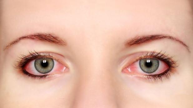 Tanda-Tanda Mata Sakit dan Lelah
