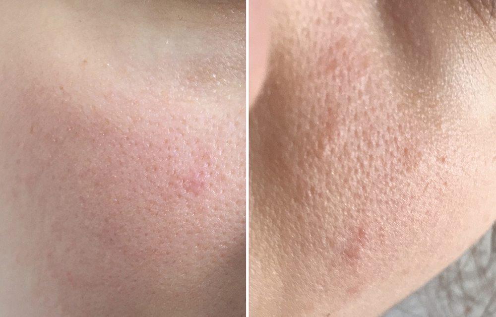 obraz skóry z lekkimi wypryskami na policzkach