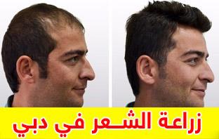 تجربتي في زراعة الشعر في دبي