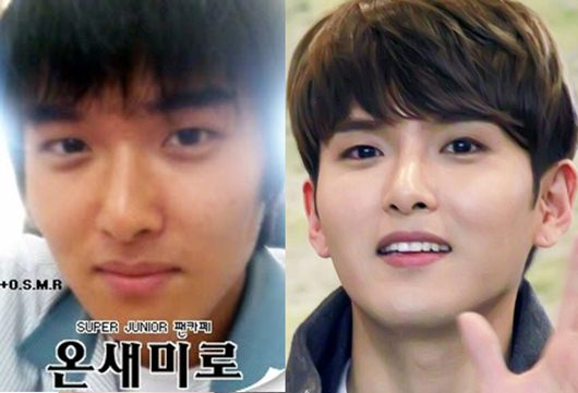 Ryeowook Plastic Surgery Before And After Pictures Kpop