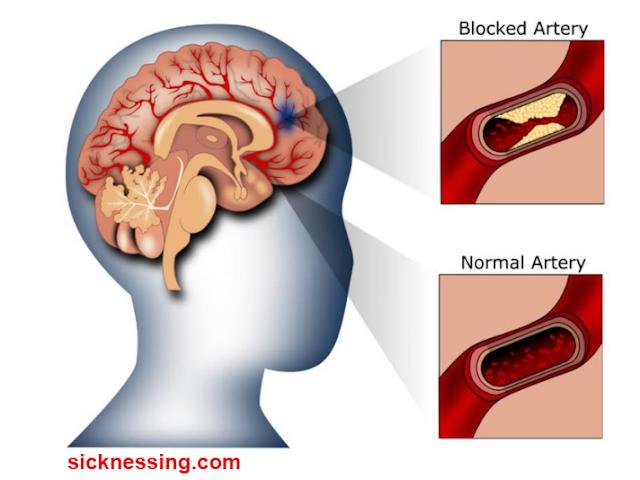 النوبة الإقفارية العابرة (TIA)  الأعراض، الاسباب، التشخيص والعلاج