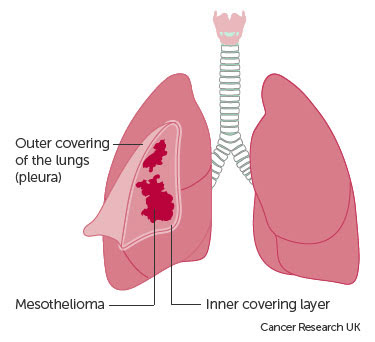 Surgery Treatment Options for Pleural Mesothelioma Patients