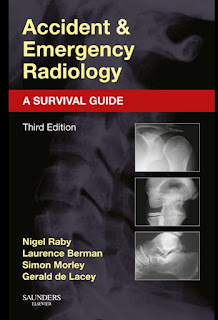 Accident and Emergency Radiology A Survival Guide 3rd Edition