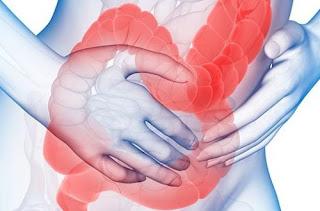 Bệnh viêm đại trực tràng co thắt là thế nào