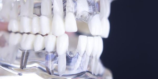 Save Tooth Loss in the following ways