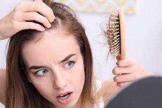 Cara Ampuh dan Mudah Mengobati Rambut Rontok