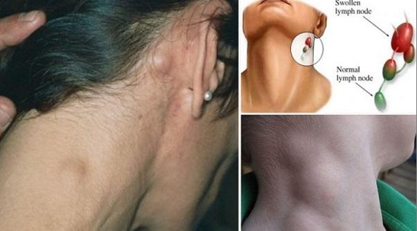 Awas Bengkak Tak Surut Pada Leher, Demam, Letih & Berat Badan Turun! Boleh Jadi Petanda Kanser Limfoma