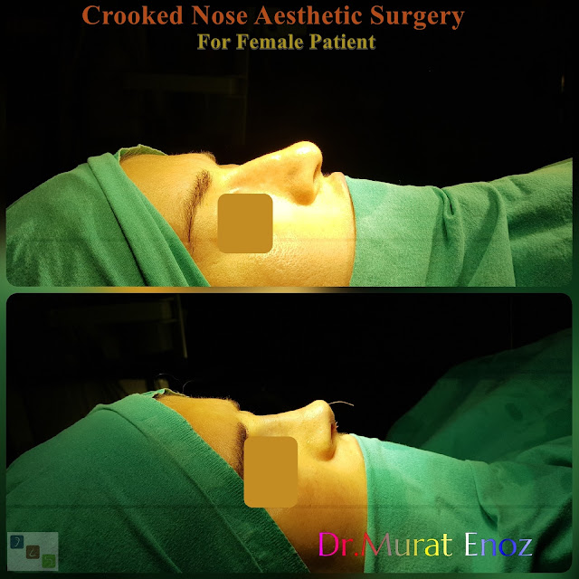 Crooked Nose Job Surgery For Women - Istanbul Rhinoplasty