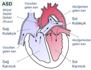 Penyebab jantung bocor dan cara mengobatinya