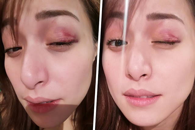 SHOCKING: Cristine Reyes' Left Eye Bruised After Kick To The Face! Must See!