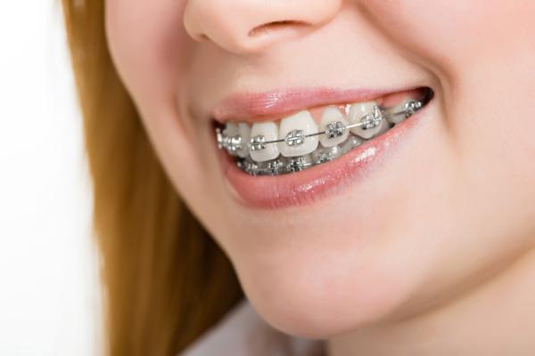 Mini ABC aparatu ortodontycznego i moja historia