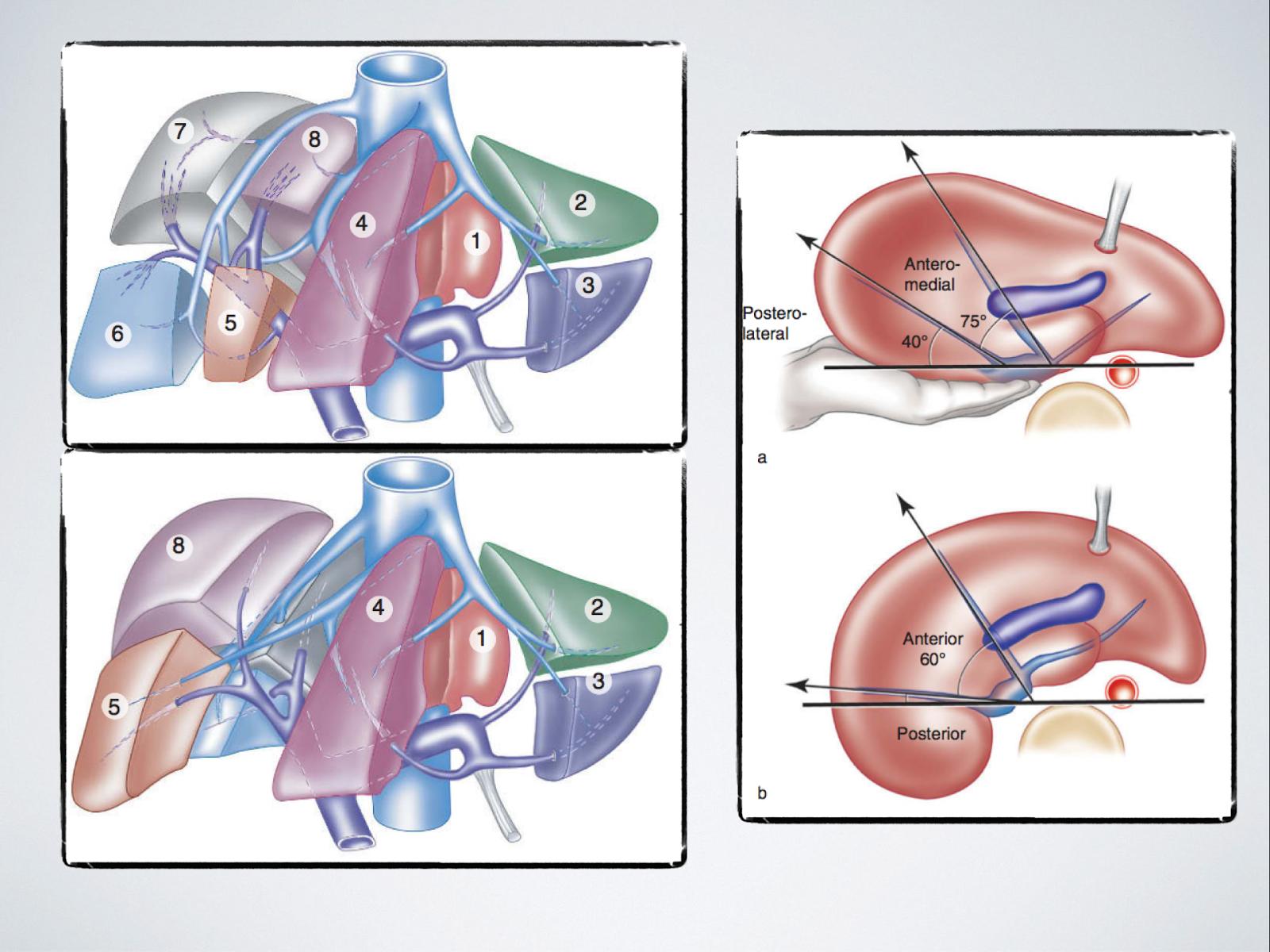 Cuadernos de Anatomía Quirúrgica: Segmentación hepática en ecografía.