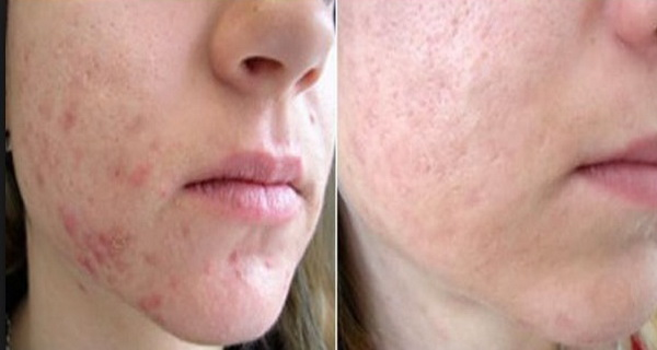 acneea apare din interior