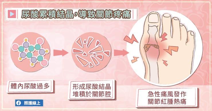 尿酸累積結晶,導致關節疼痛