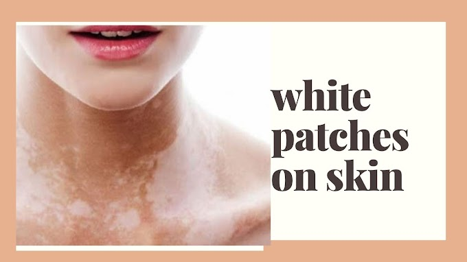 5 home remedies tips for white patches on skin