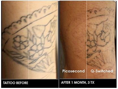 皮秒激光PICO Laser的過程和治療後護理 : drsky