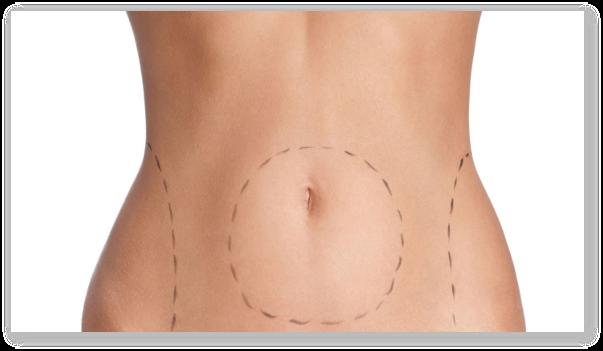 Ce este abdominoplastia? Avantajele si dezavantajele abdominoplastiei
