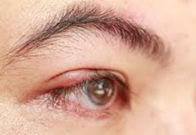 10 Cara Cepat Mengatasi Mata Bintitan dengan Alami Dan Aman