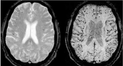 Alluminio-dei-vaccini-nel-cervello-degli-autistici