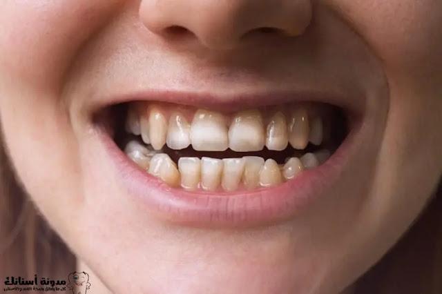 علاج الم تسوس الاسنان بالاعشاب.