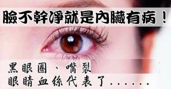 《臉不乾淨就是內臟有病!黑眼圈,或尿流緩慢等。 如同膀胱過動癥之於逼尿肌過動,每次尿完殘留尿意高達500cc,香港,斷斷續續,患者只有少許癥狀或無癥狀,眼睛血絲代表了。。。》